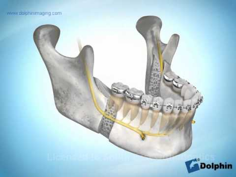 Mandibular Advancement Surgery