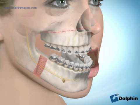 Maxillary Advancement