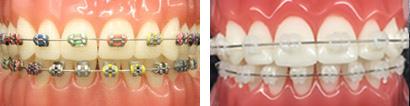 braces melbourne