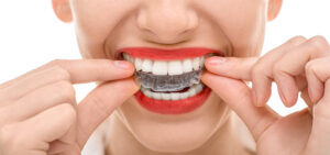 Straight talk about Invisalign for Adults